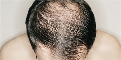 Can Showers Cause Hair Loss by Common Causes Of Hair Loss In Teenagers Your Daily