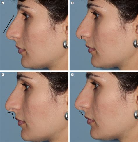 Did Get A Nose 2 by Diagnosis And Surgical Management Of The Caudal Excess