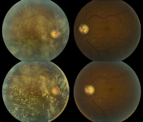 retinal pattern dystrophy icd 9 asteroid hyalosis oct page 2 pics about space