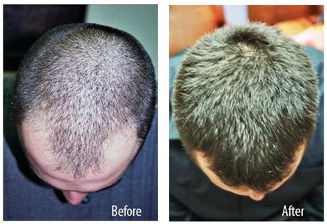 low level laser therapy hair loss before afterhair merdekawalk