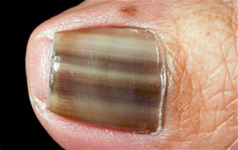 several toenails look skin color under them fungal infection of the nails mediologiest