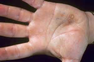 small warts on palms of answers on healthtap