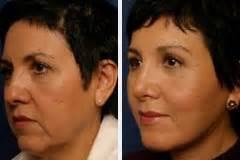mini facelift vorher nachher mini facelifting ablauf kosten vorher nachher bilder