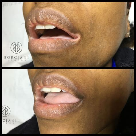 vitiligo tattoo vitiligo affects both and and can appear on all
