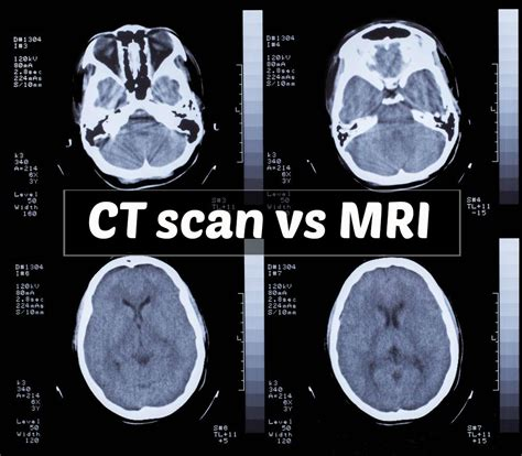 Understand the risks and indications of ct scan vs mri