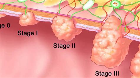 Can You Detect Colon Cancer From A Stool Sle by Colon Cancer Screening Is So Easy Now Hanson
