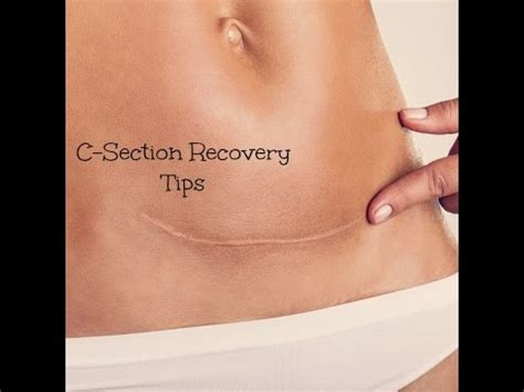 c section recovery tips