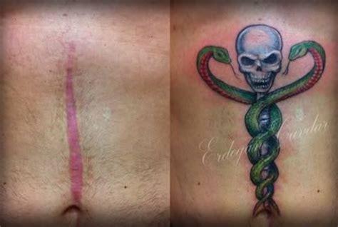 tattoo turned keloid des tatouages pour cacher des cicatrices exemples