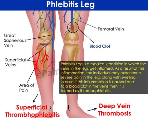 blood clot in leg treatment options methods on how to