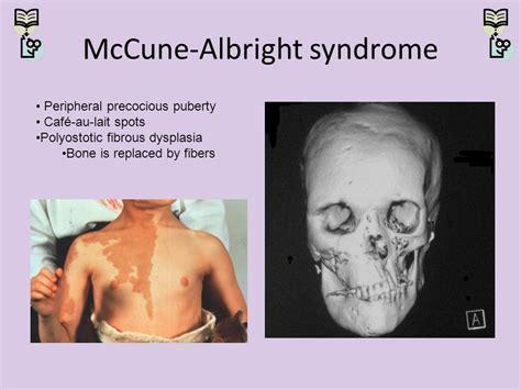 Bor Cune pediatric board review endocrine part 4 ppt
