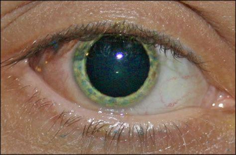 a word on eyeball tattooing eyeball tattooing update 1 jpg