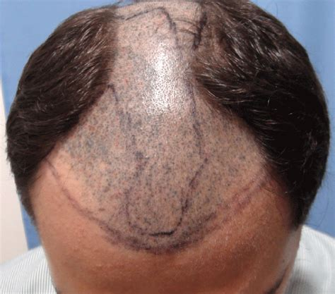 pics of scalp micropigmentation on people with long hair scalp pigmentation hair pictures to pin on pinterest