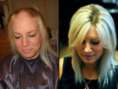 hair loss expert stylists portland before and after hair replacement on pinterest hair