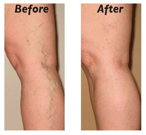 leg l from treat varicose and spider veins with these 10 simple steps
