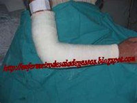 lade gesso enfermeiro de sala de gessos braquiantebraquial