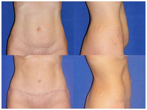plastic surgery after c section mini tummy tuck cost male models picture