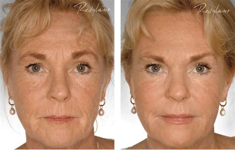 Where Your Wrinkle Filler Gets Injected Podcast by Restylane Treatment Before And After