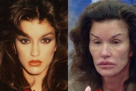 celebs who havent had neck lifts 10 times plastic surgery went horribly wrong for celebrities