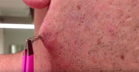 ingrown hair within his chest can you get through this guy removing a huge ingrown hair