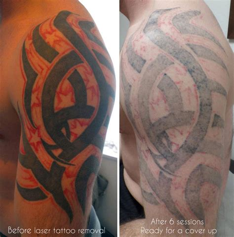 tattoo removal or cover up laser removal birmingham uk