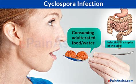 cyclospora infection treatment causes symptoms risk