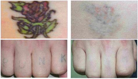 tattoo removal montreal d 233 tatouage au laser laser removal treatments in