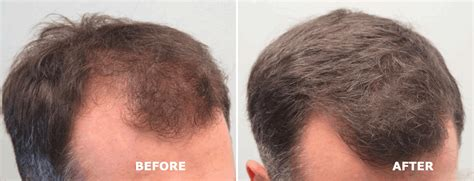 propecia or rogaine for frontal hair loss receding hairline propecia results buy propecia online cheap