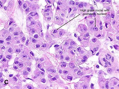 mesothelioma pathology diagnosis american urological association malignant mesothelioma mm