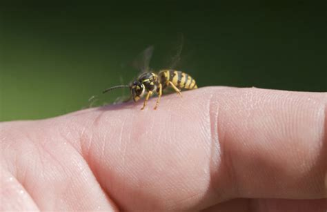 stung by bee 19 easy home remedies to get rid of wasp sting