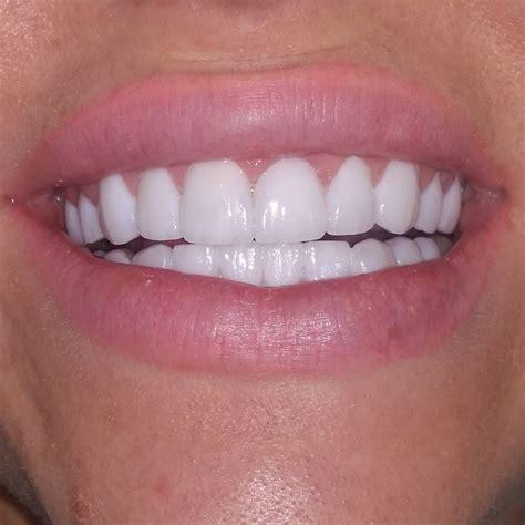 pin  rin  dingding  teeth study   veneers