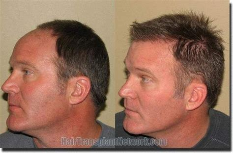 hair transplant before and after hair transplant patient of paul v shapiro m d