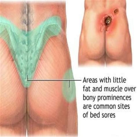 how to treat bed sores on buttocks useful home remedies to treat bed sores healing pinterest