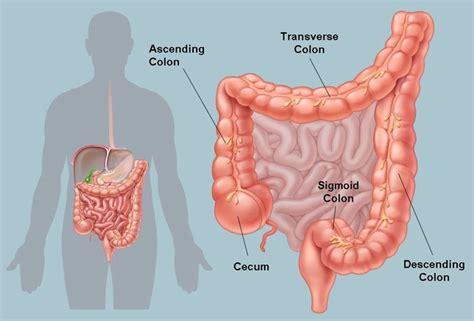 Colitis Pictures Colon
