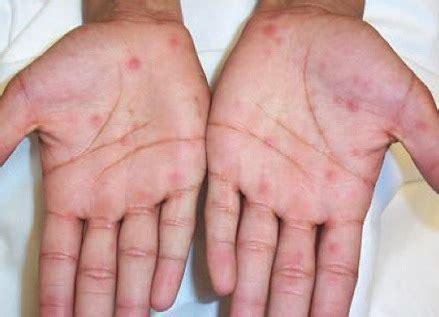 syphilis rash on hands image gallery syphilis rash