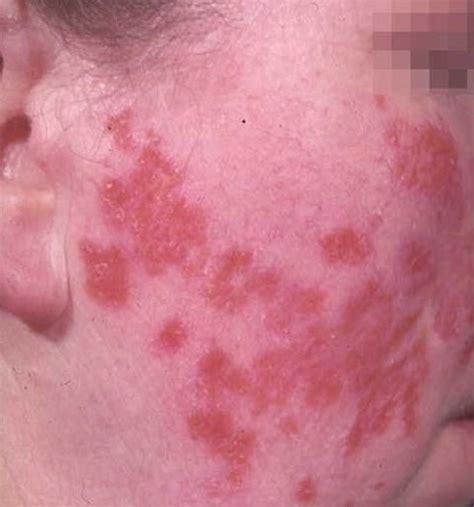 rashes lupus symptoms in women medical pictures info discoid lupus erythematosus