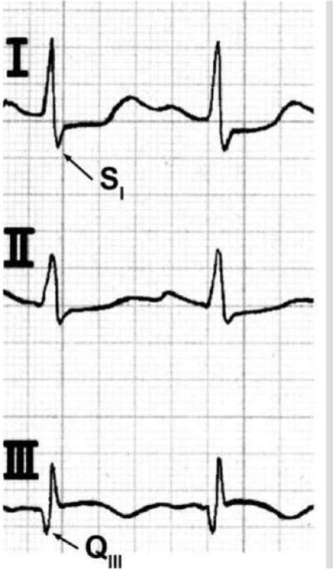 strain pattern ecg definition siqiii pattern in the ecg indicating acute right ventri