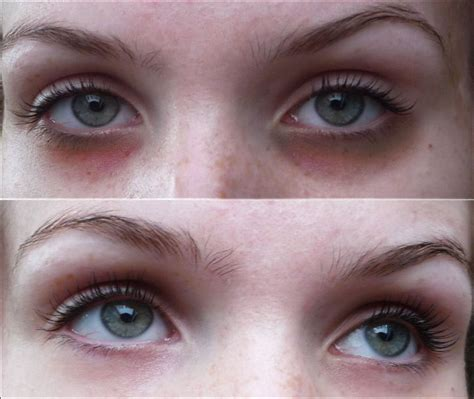 black under eye carboxytherapy clinic london for eyes dark circles