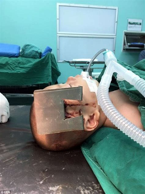 baby rolled off bed seven month old boy in china left with metal lodged in his