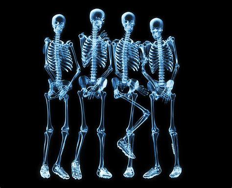 imagenes medicas rayos x 30 fotograf 237 as de rayos x que har 225 n que veas el cuerpo