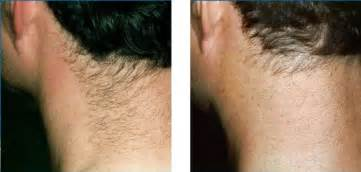 neck hair laser hair removal pictures images photos 187 results