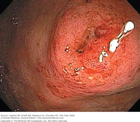 first bowel movement after c section chapter 65 inflammatory bowel disease the color atlas