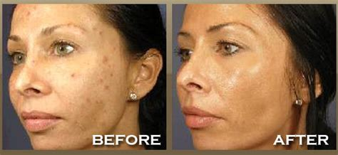 chemical peels effects