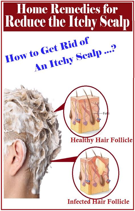 home remedies for itchy scalp hair itchy