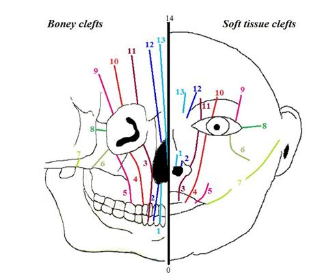 pattern classification for finding facial growth abnormalities congenital craniofacial malformations and their surgical