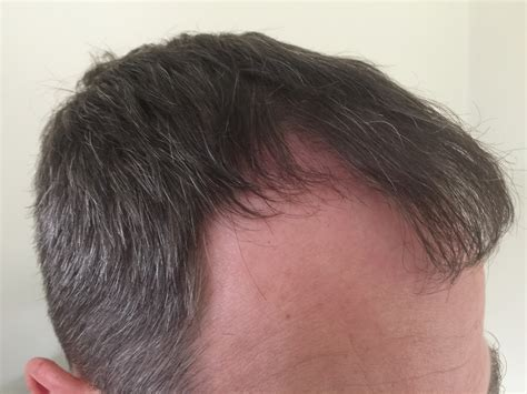 new hair transplant new hair transplant what are the factors that determine