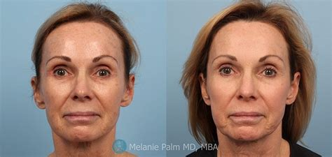 dermatology blue light treatment photodynamic therapy pdt dr melanie palm san diego