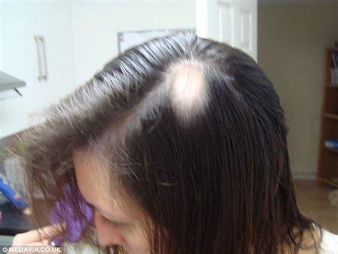 ways to cover bakd spots with weaves bride to be diagnosed with alopecia months before her