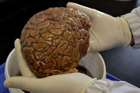 imagenes reales cerebro humano biblioteca de cerebros para antioquia y el mundo