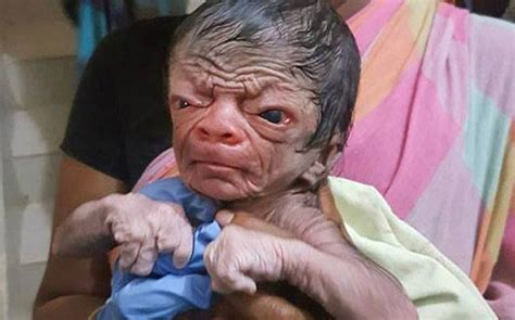 baby boy from bangladesh with progenia looks like an 80