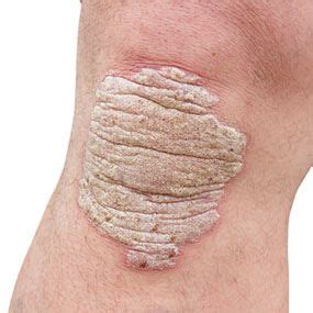 U And Your Skin by What Does Pustular Psoriasis Look Like